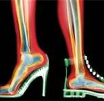 The bones and joints of the foot and ankle can be subject to approximately three times the body weight during walking alone